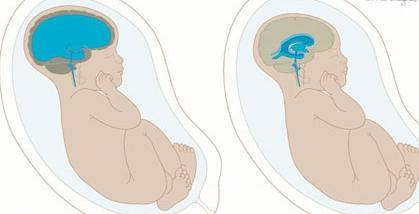 Водянка у новорожденных. Водянка мозга у новорожденных